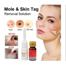 Skin Mole Remover Set Face Care Tags Warts Removal Repair Solution Kit